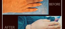 جوانسازی دست با تزریق نانوفت