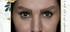 لیفت ابرو راهی برای جذابیت چشم ها
